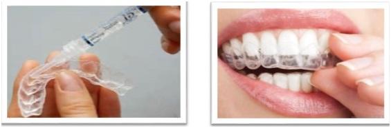 wybielanie zębów w domu preparaty